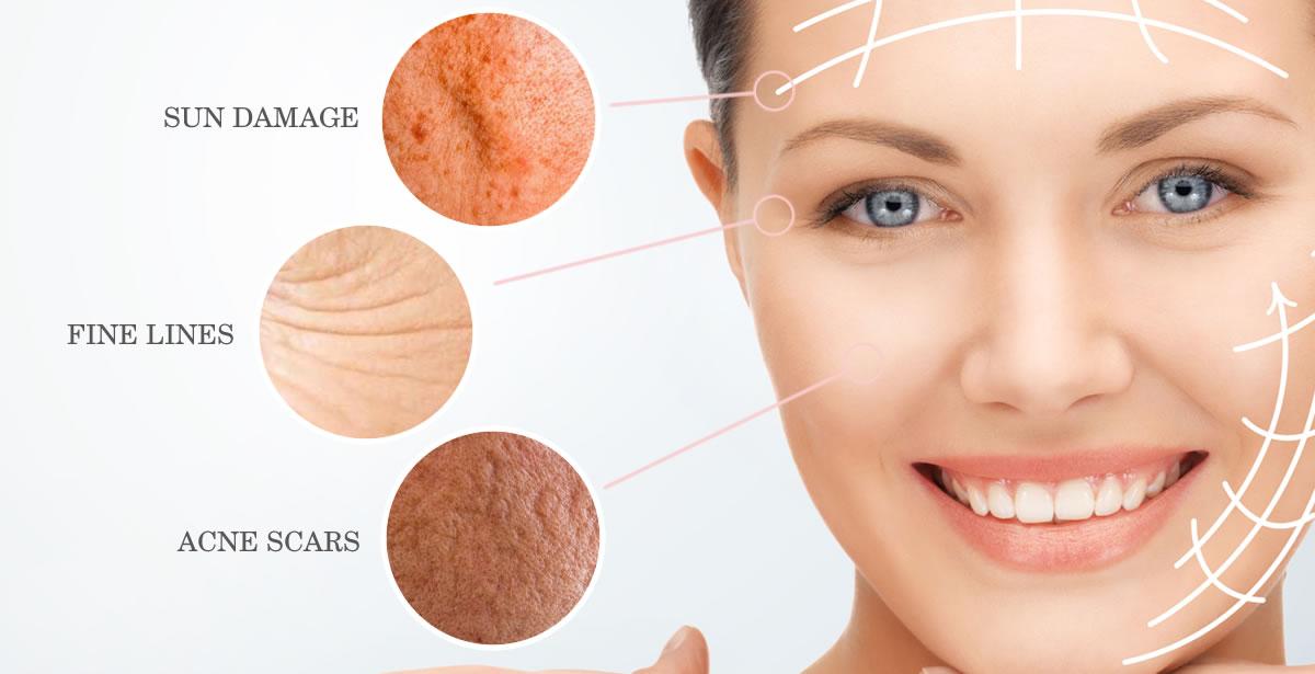 Skin Rejuvenation Rainham Medway Kent