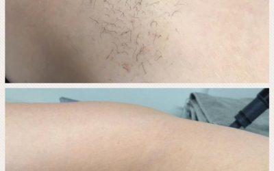 I love your prickly armpits….. said no one EVER!